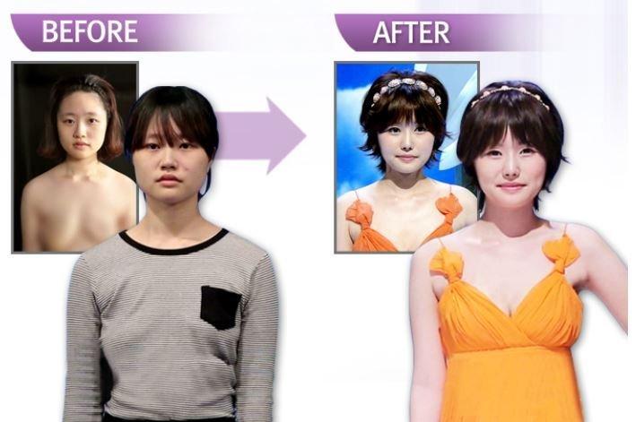 Lee Ji Won