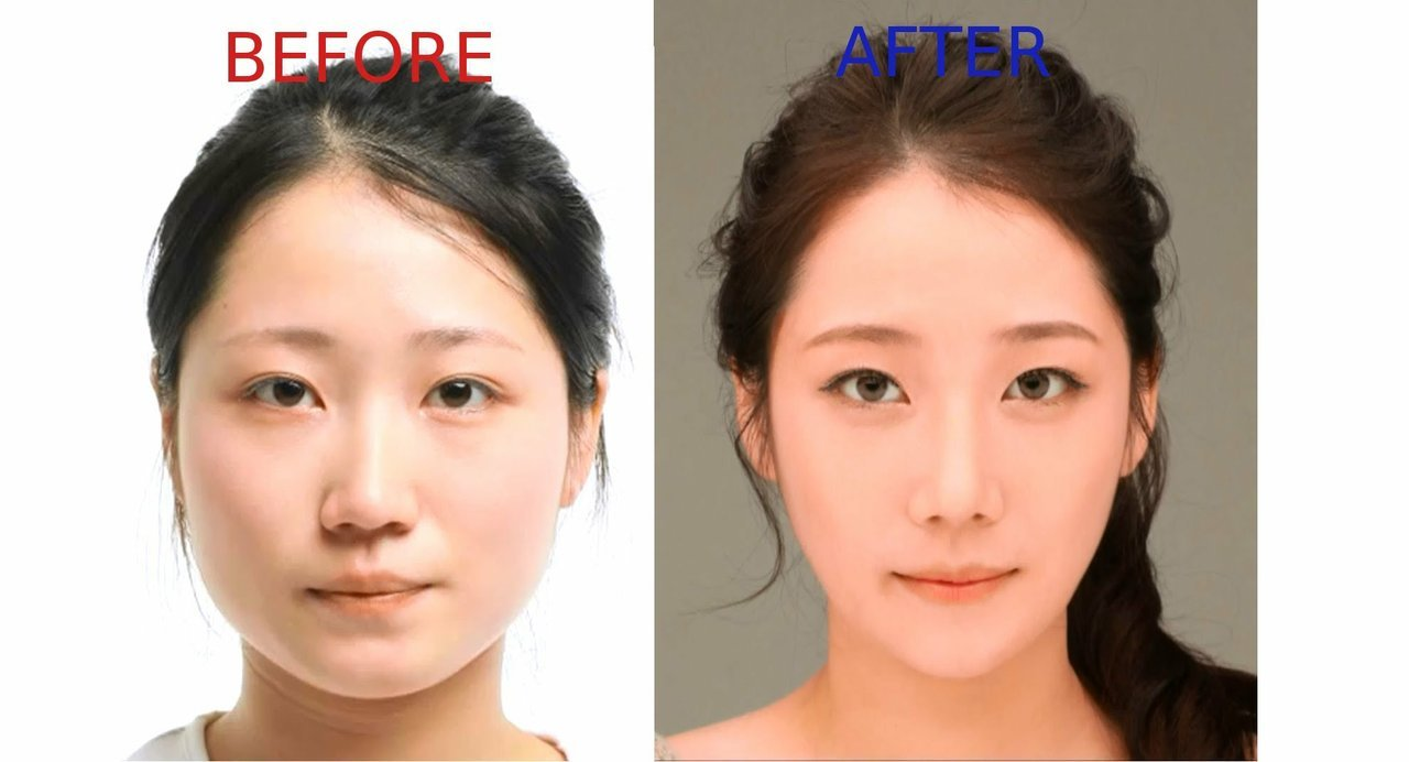 Image result for korea before and after surgery